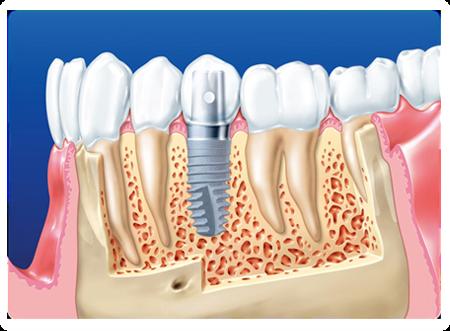 Implanty zębowe Szczecin